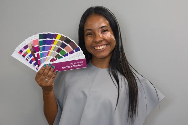 post 47 - teste de coloração pessoal em pele com vitiligo